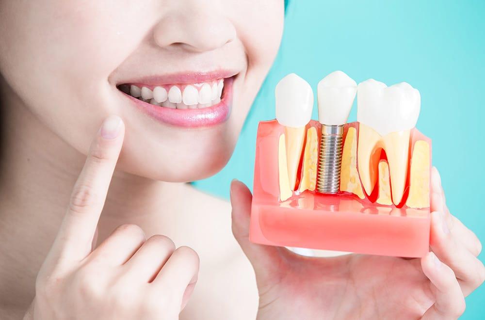 Leistungen, Implantate und Knochenaufbau, Foto von Zahnimplantaten