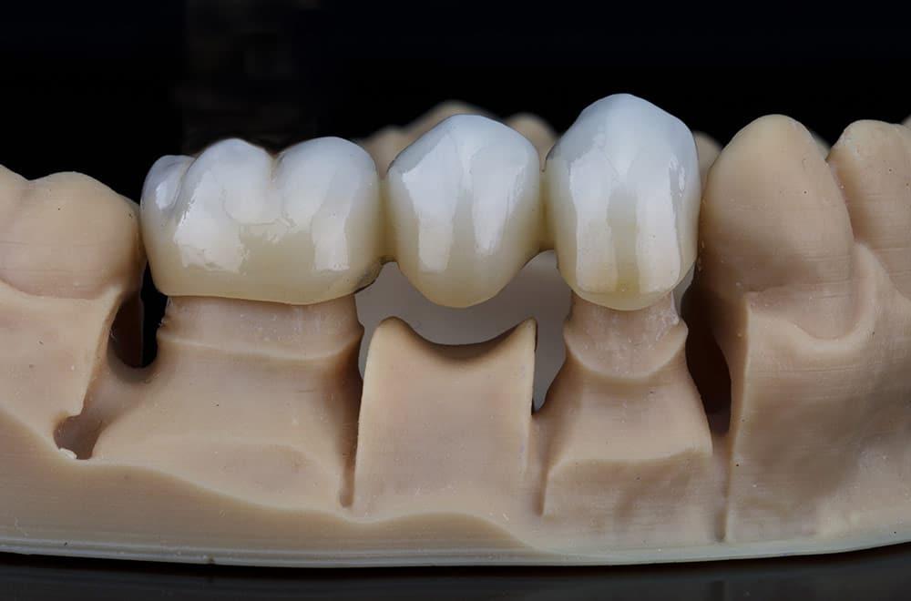 Leistungen, Zahn-Kronen und Brücken, Foto von Zahnbrücke